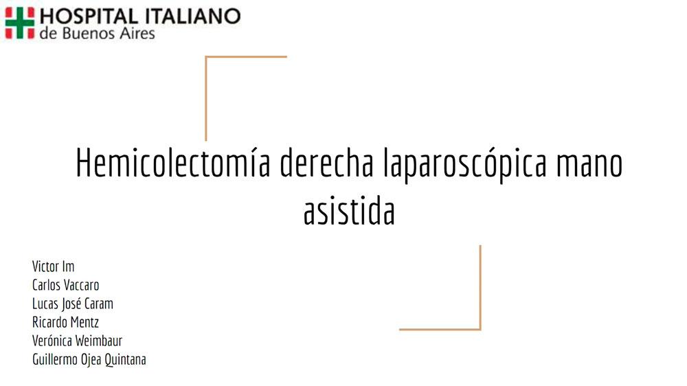 Hemicolectomía-derecha-laparoscópica-mano-asistida